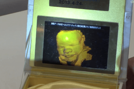 3D Hologram baby pic