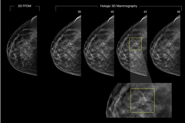 d mammography better than images