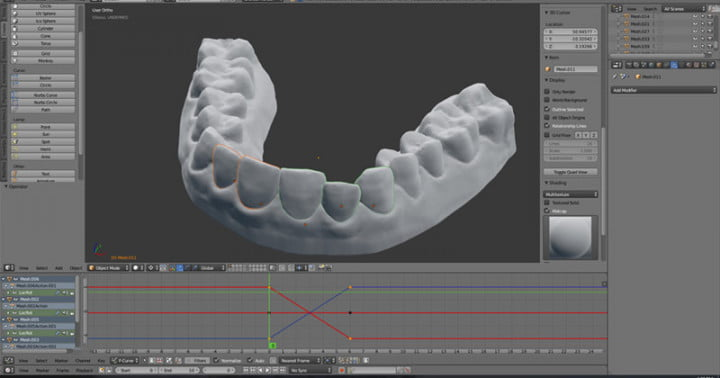 3D-printed-Invisalign_003