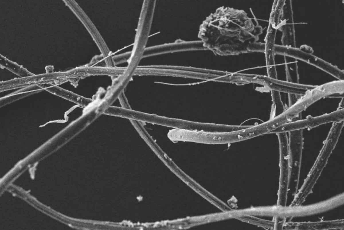 doing laundry poisons food chain acrylic fibers under electron microscope plymouth university