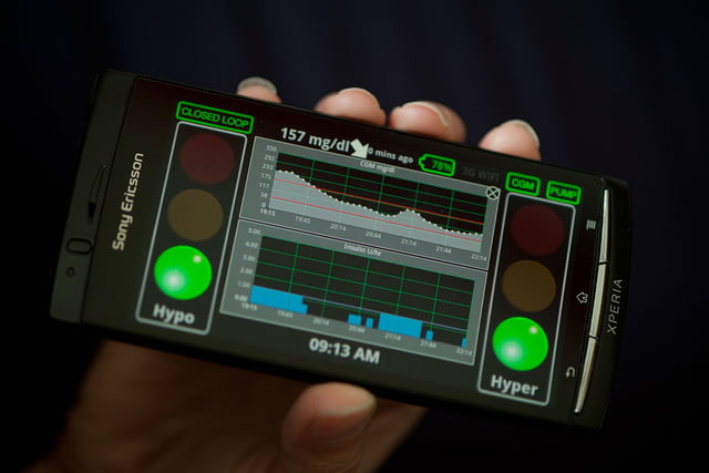artificial pancreas that uses smartphone app and sensor may be diabetes game changer artificialpancreas  head