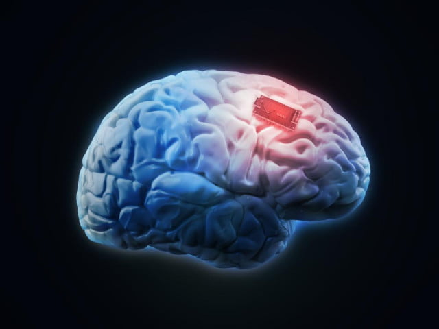 brain implant remote control drug delivery