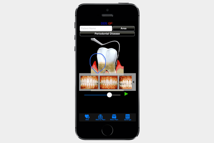 DDS GP for iPhone