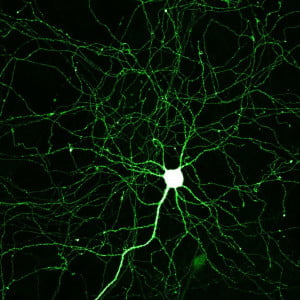 Hippocampal neuron expressing monomeric Green Fluorescent Protein