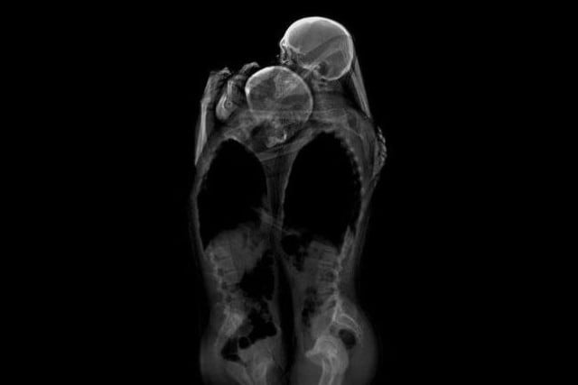artists using xray create intimate photos of couples kanda hayashi