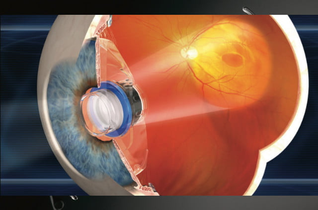 bionic eye surgery restores patients sight miniature telescope drawing