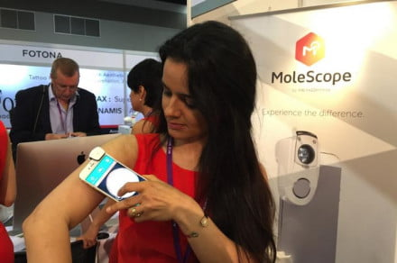 The MoleScope being demonstrated