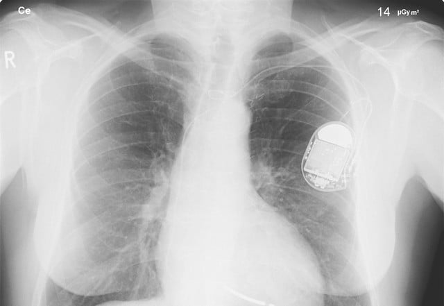 pacemaker data arson charges heart