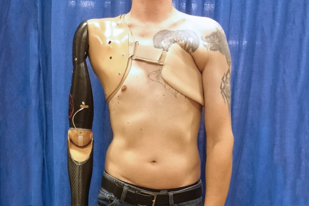 robot arm spinal cord robotic prostheticc