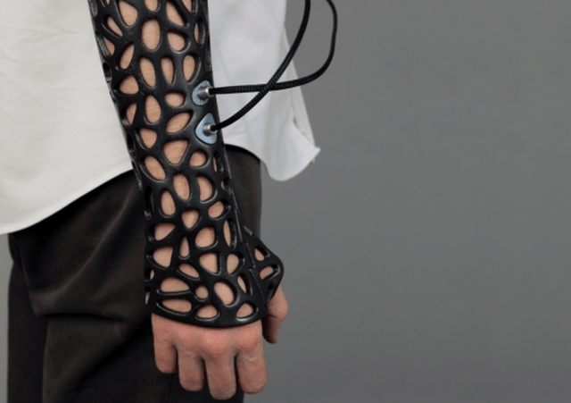 osteoid  d printed cast uses ultrasound heal bones faster screen shot at am