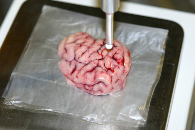 smart scalpel identifies brain tumors during surgery can identify cancerous tissue in the middle of