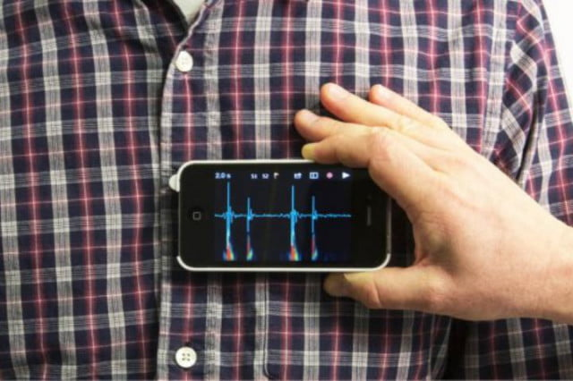 steth io case turns your iphone into a stethoscope