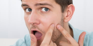pimple treatment, shocked young man looking at pimple on forehead