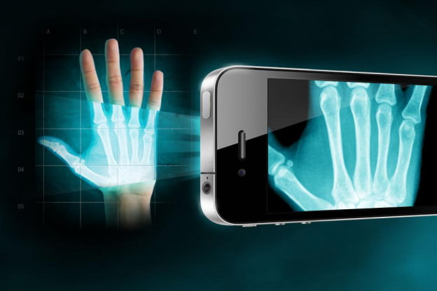 x-ray-iphone