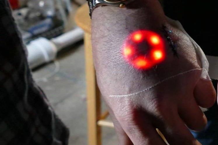 The 8 Coolest Biohacking Implants and Body Modifications | Digital