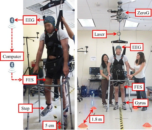 Paralyzed man walks unassisted using only brain control — no exoskeleton required